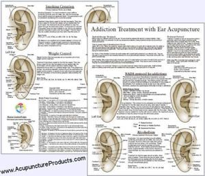 weight loss acupuncture points chart