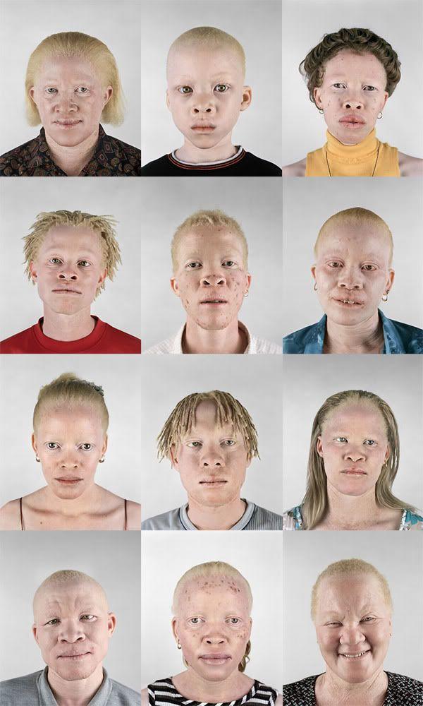Albino black people - Imgur
