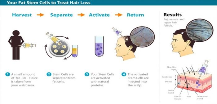 Adult Adipose Derived Stem Cell - Toronto Hair Transplant and Toronto Hair Restoration