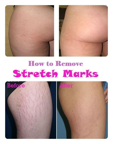 How to Remove Stretch Marks Naturally - I am telling you Homemade ...