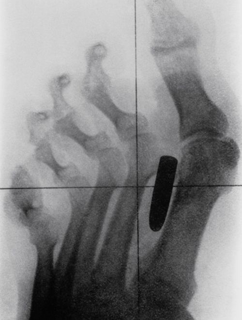 A historical X-ray of the foot of a Boer War (1899-1902) soldier, showing a gunshot wound. A bullet has become lodged between the metatarsal bones of the big and second toes.