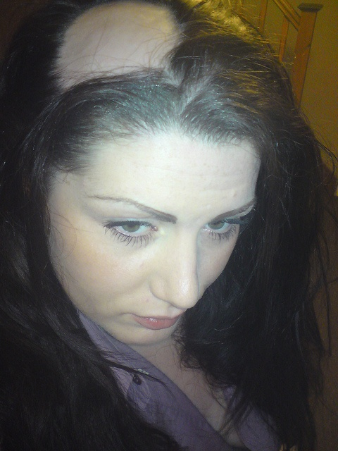 Alopecia UK Flickr account
