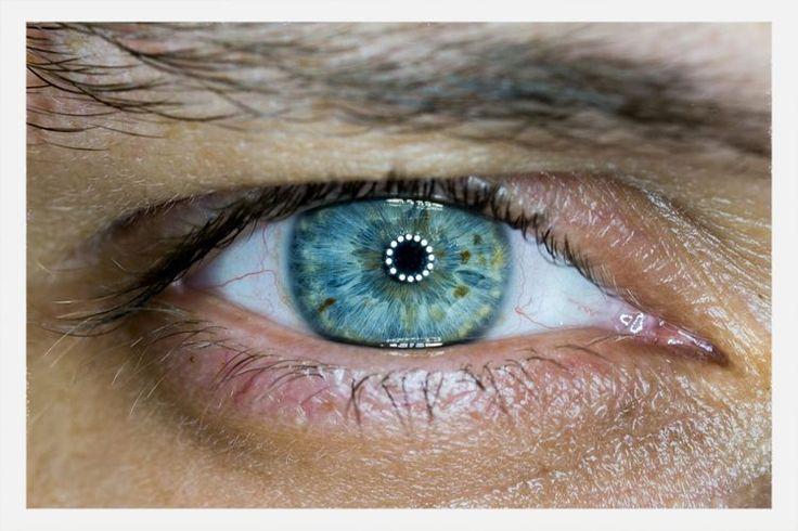 Fibromyalgia, the Optic Nerve, and Neurodegeneration
