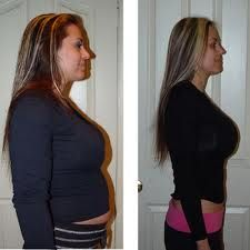 Before & After - Isagenix