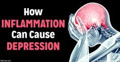 Depression is increasingly recognized as a problem rooted in chronic inflammation and it can have a profound impact on your mental health. http://articles.mercola.com/sites/articles/archive/2016/10/09/depression-inflammation.aspx