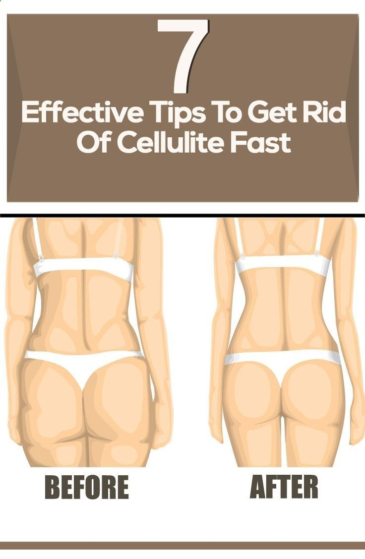 How to get rid of Cellulite with simple Cellulite Removal Exercises!
