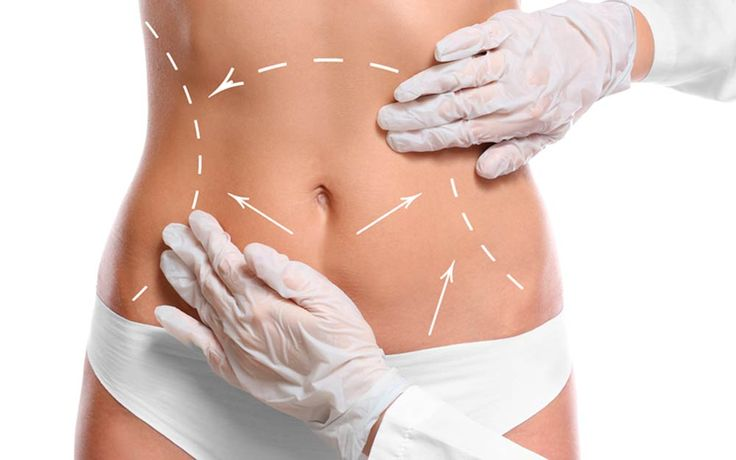 JUVA in the MEDIA! Here's How Liposuction Totally Changed While No One Was Paying Attention... Read here: