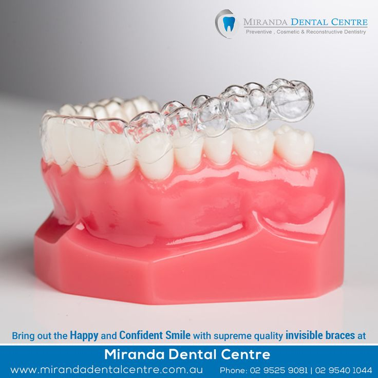 Bring out the Happy and Confident Smile with supreme quality invisible braces at Miranda Dental Centre.