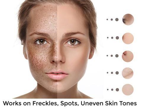 Pin On Victoria S Skin Tight Naturals Skin Transforming Formulas