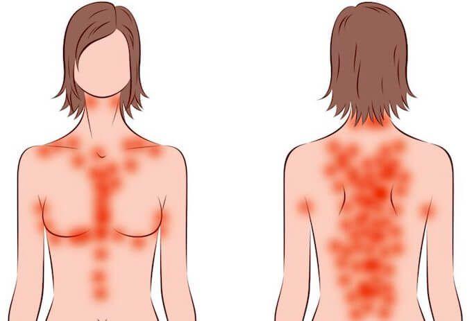 dieta chetogenica per la psoriasis