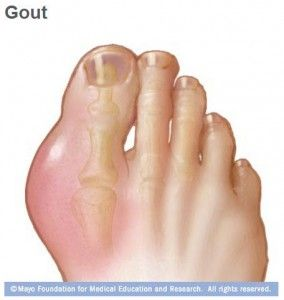 What causes #gout? I have had one attack and am not on treatment but am watching my diet. Is it possible that I won't have additional attacks or need treatment for it, or is it likely to come back again?