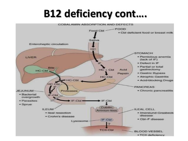 Vit b12 deficiency causes and management
