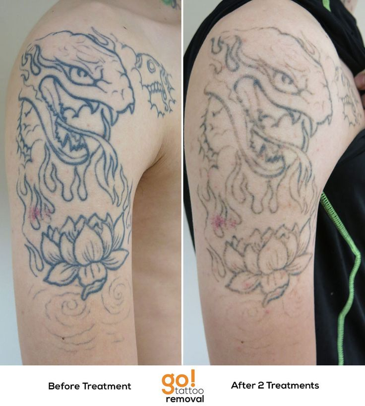1000 images about tattoo removal in progress on pinterest for How to fade a tattoo