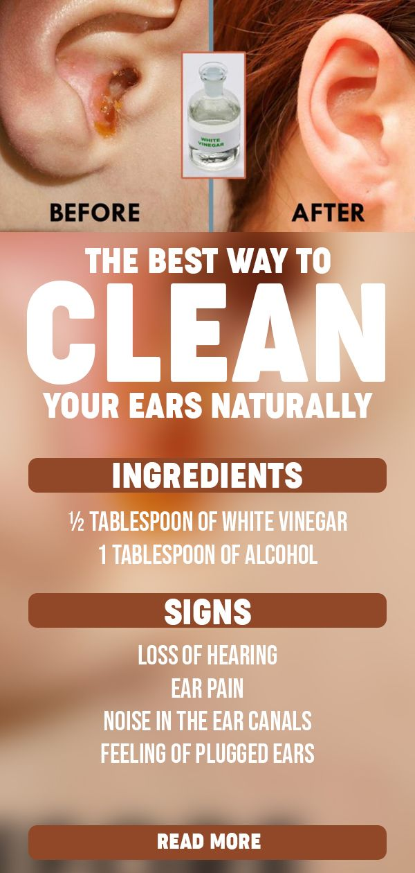 The Best Way To Clean Your Ears Naturally Cleaning Your Ears Clean Ear Wax Out Ear Cleaning Wax