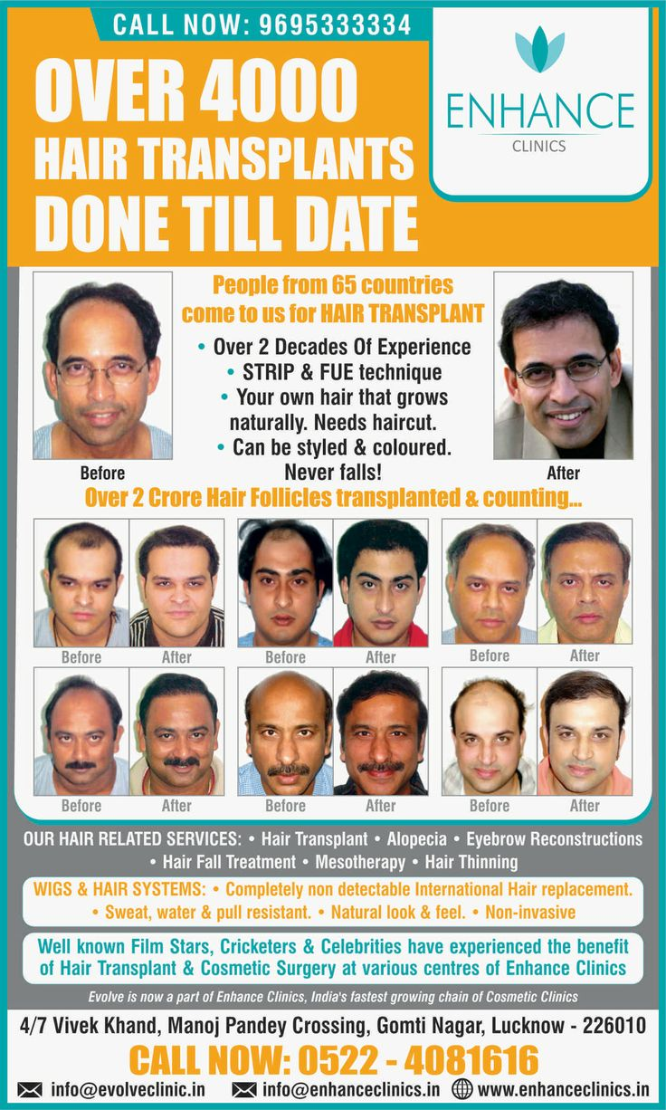 Enhance in Lucknow:  Hair Regrowth Results Visit http://www.enhanceclinics.in/hairlossmain for more.