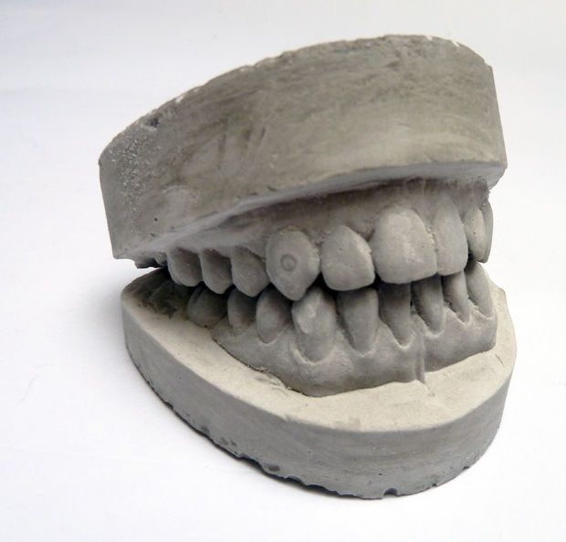Sculpt custom, perfectly-fitting fake teeth on top, for a professional Halloween costume look.