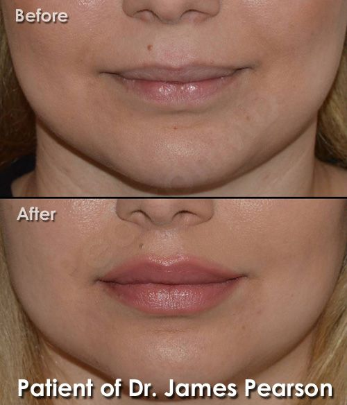 A Lip Lift can decrease the relative vertical length of the cutaneous lip which elongates as part of the aging process.  Dr. Pearson's Lip Lift technique conceals the incision site underneath the nose, at the junction between the nose and upper lip. This location typically leaves the scar imperceptible and aesthetically pleasing. #PearsonMD #DrJamesPearson #DrPearson #PlasticSurgery #FacialPlasticSurgery #cosmeticsurgery #liplift #lipenhancement