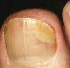 Эффективное лечение грибка ногтей ног солью