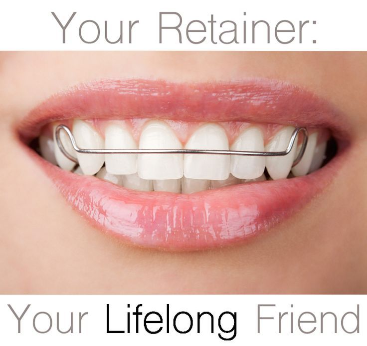 Retainers should be worn as long as you want your teeth to stay straight. Read more about retainers and solutions for shifted teeth! #retainers #braces #orthodontics