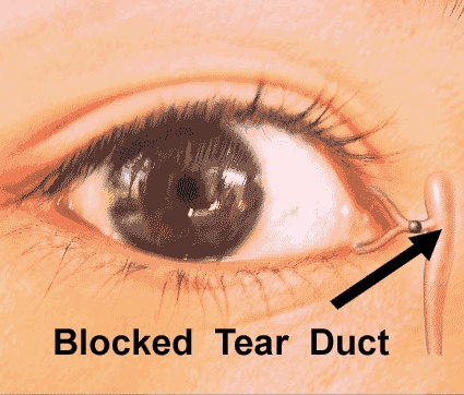 Blocked Tear Duct Causes Symptoms Diagnosis