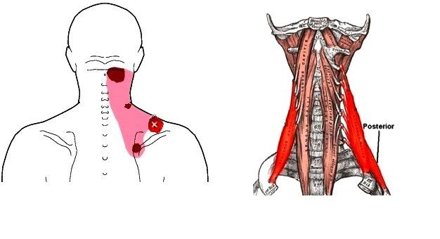"""What You Need To Know About """"Muscle Knots"""" or Trigger Points"""