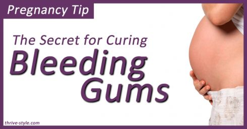 A Miracle Cure for Bleeding Gums During Pregnancy! -