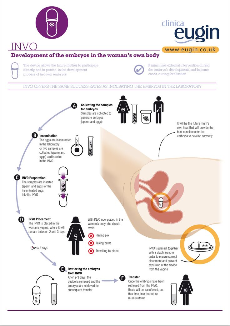 INVO: Development of the embryos in the woman's own body  The device allows the future mother to participate directly and personally in the development process of her own embryos http://www.eugin.co.uk/invo