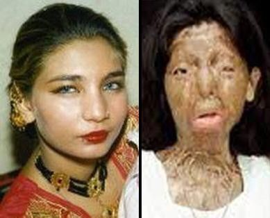 Pakistan  Fakhra Younus was attacked by her husband Bilal Khar, ex-MPA of the Punjab Assembly and the son of Pakistani Politician Ghulam Mustafa Khar. He threw acid in her face after they split up. Tehmina Durrani, the author of 'My Feudal Lord', the former step mother of Bilal Khar tried to help Fakhra. She was sent to Italy for treatment. After having 39 re-constructive surgeries, Fakhra committed suicide.