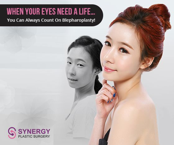 Our eyes show the earliest signs of aging by showing wrinkles, which results in loose skin under the eyes. Blepharoplasty also known as an #Eye_bag_surgery is a surgical procedure to correct premature ageing by removing excess skin and fatty tissue from above the eye.   Reach out to us at: http://www.synergypsc.com/eye-surgery/lower-eyelid-sugery/under-eye-bag-surgery/