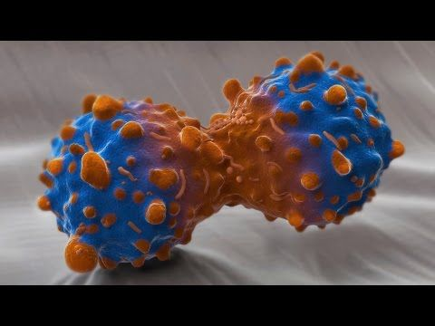 A simple blood test could transform the treatment of lung cancer.     Beating cancer | Royal Society Summer Science Exhibition 2015    http://sse.royalsociety.org/2015/beating-cancer/