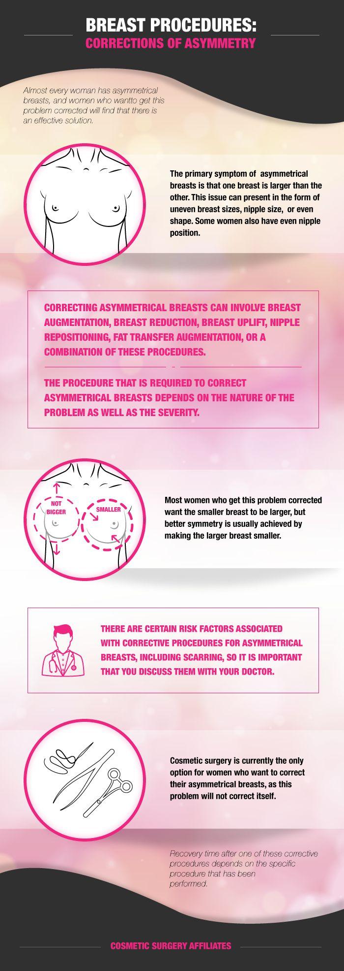 Statistics of breast asymmetry