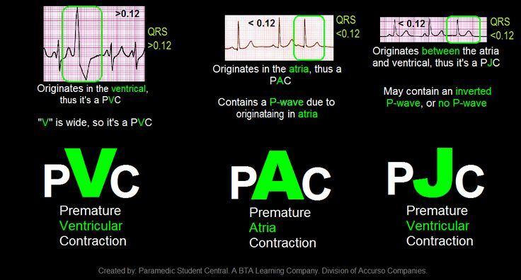 Paramedic Student Central: PVC, PAC, PJC Quick Reference Tool