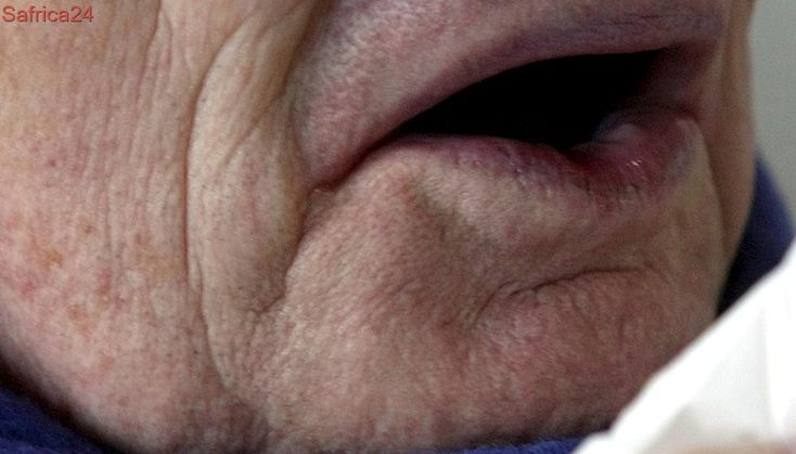 Why you should not pinch your nose to stop a sneeze