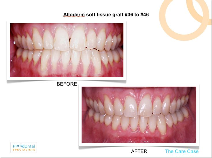 Before And After Gum Graft Treatment For Receding Gums