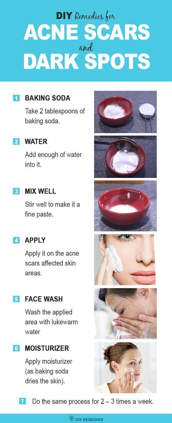 Baking Soda for Acne Scars and Dark Spots #acnecau…