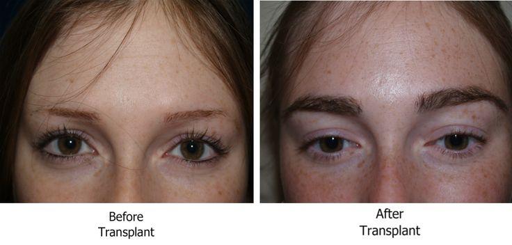 eyebrow transplant - Google Search