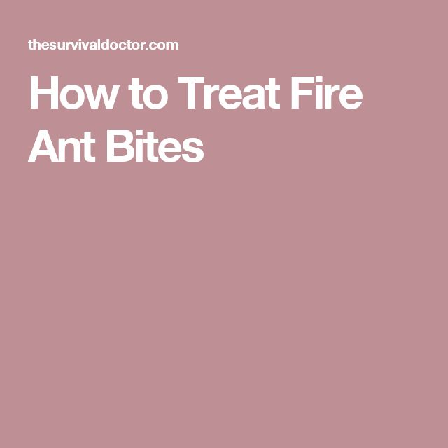 How to Treat Fire Ant Bites