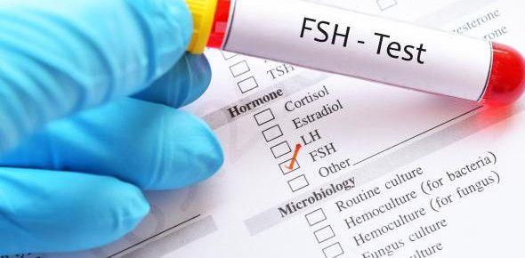 ماهو تحليل Fsh للمراة Cortisol Olivia Baker Person