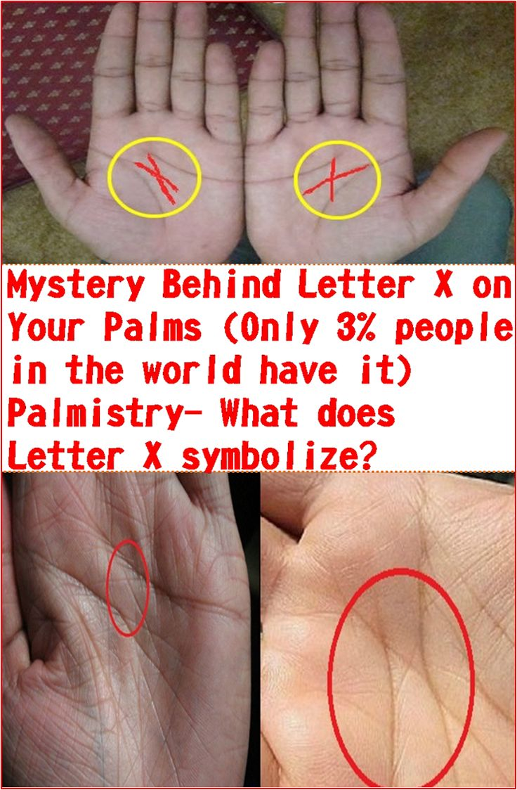 Mystery Behind Letter X on Your Palms (Only 3% people in the world have it) Palmistry- What does Letter X symbolize?