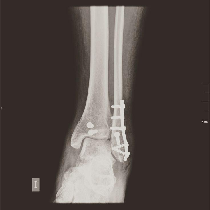 Luxo fractura de tobillo reparado con placa de titanio y tornillos