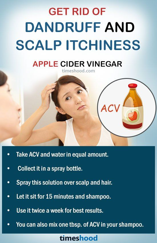 how to stop an itchy scalp fast