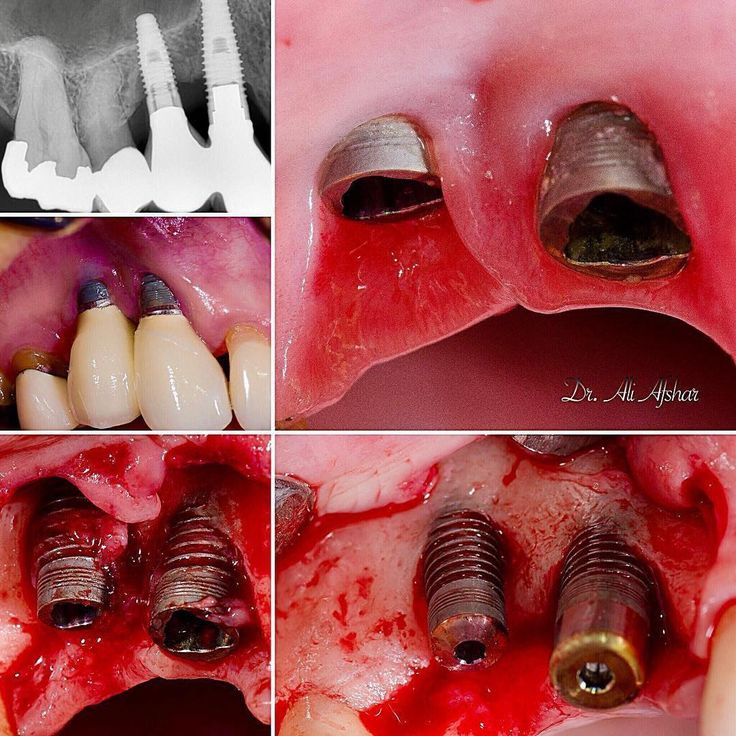 #Repost @afshar_dds  Nasty nasty peri implantitis. 10 year old implants...do you think its worth trying to save them or just too much going wrong for them?#periimplantitis #implantsurgery #dentalimplants #dentalimplant #dentist #dentista #dentists #odonto #odontopediatriabrasil #dentalhygienist #dentalassistant #dentalstudent #tooth #teeth #smile #pedental
