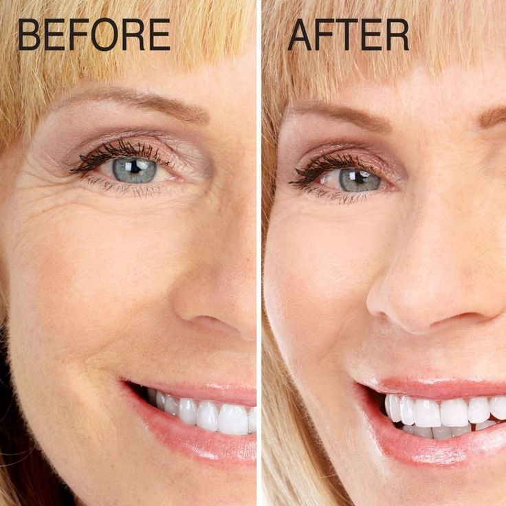 Advanced Clinicals Collagen Serum Instant Plumping Anti Aging Wrinkles Skin Care #AdvancedClinicals