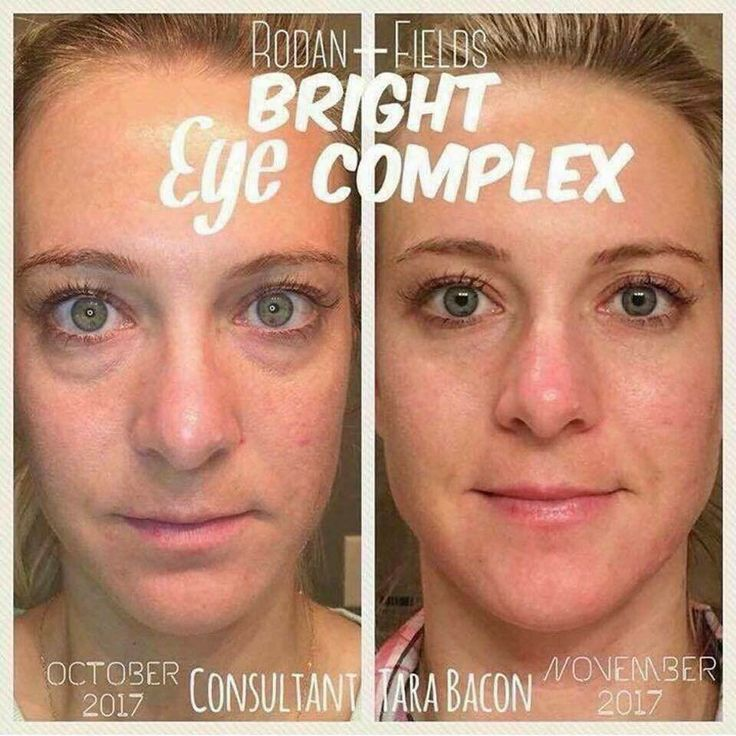 I don't know what I did before Bright Eye Complex. Oh wait yes I do.... I layered on concealer to cover the baggage New Mom? College students pulling all-nighters? Night Owl? Hereditary circles? Over-indulgence in the weekend? Meet your new best friend