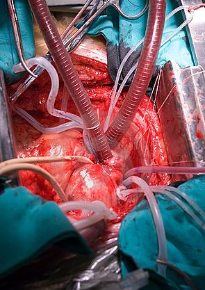 Cardiothoracic Surgery- this is where my heart lies in nursing. I can not wait until I can go back to school and get my RN and get back to working with these patients again.