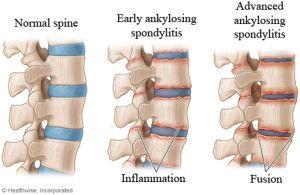 Ankylosing spondylitis – Signs symptoms and treatment – 4