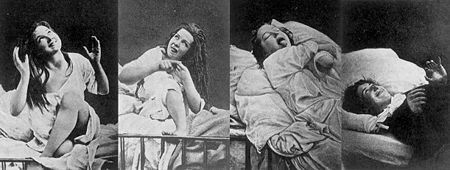 "Hysteria was widely discussed in the medical literature of the 19th century. Women considered to be suffering from it exhibited a wide array of symptoms including faintness, nervousness, sexual desire, insomnia, fluid retention, heaviness in abdomen, muscle spasm, shortness of breath, irritability, loss of appetite for food or sex, and ""a tendency to cause trouble""."