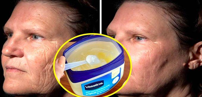Mi cara estaba horrible 21 antes de empezar este tratamiento casero que me dio mi dermatologo, cero manchas ni arruga – Mundo Salud