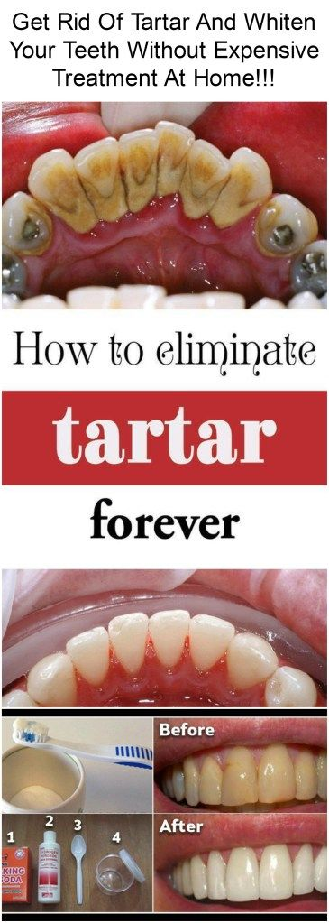 Yellow teeth, tooth decay and other problems of the teeth it really can be unpleasant. You need to know that dental health is very important and that, if the tooth is not healthy, it is not the whole organism. Therefore, go regularly to the dentist. #teeth #whiten #tatar #treatment