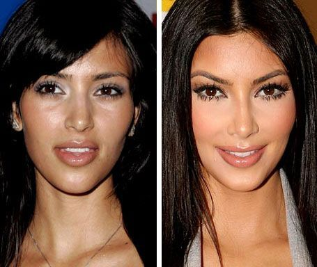Facts about Kim Kardashian before plastic surgery and after  Read full details at https://plentat.com/facts-kim-kardashian-plastic-surgery/ #celebrities #celebrity #celebritystyle #celebritynews #celebrityinsider #kimkardashianplasticsurgery #kimkardashian #kimkardashianbuttimplant #plasticsurgery #trending #trends #trendingnow #trending news #trendingnews